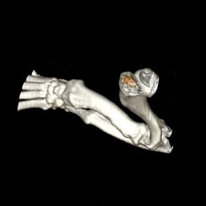 3 D Rekonstruktion Unterarm